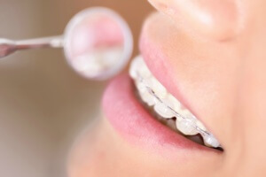 ceramic orthodontic appliances