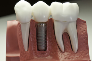 implant dentar cluj
