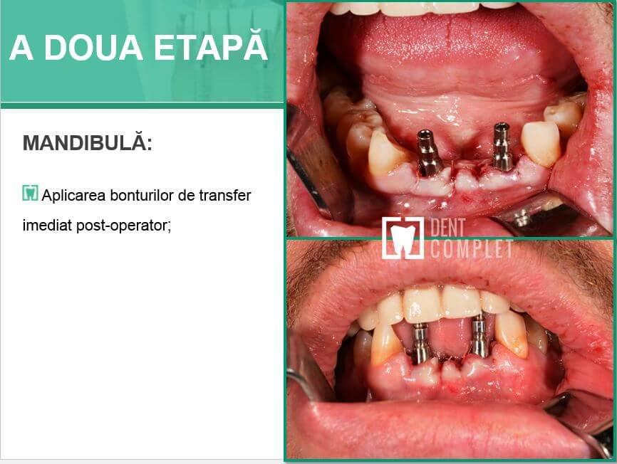 a-doua-etapa-fast&fixed-maxilar