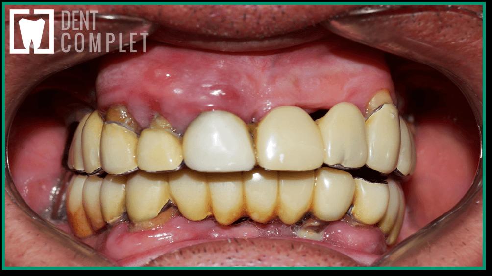 examinare-clinica-parodontala