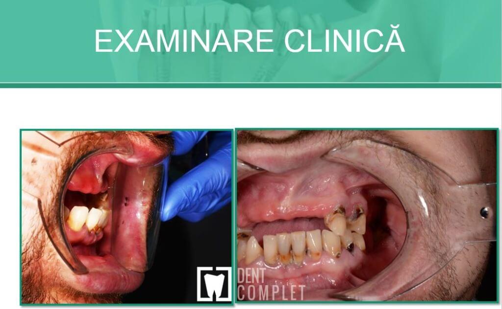 examinare-clinica-parodontoza