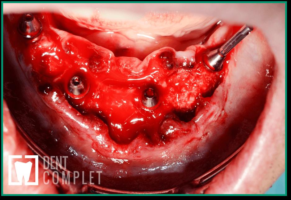 implant-inserare-bonturi