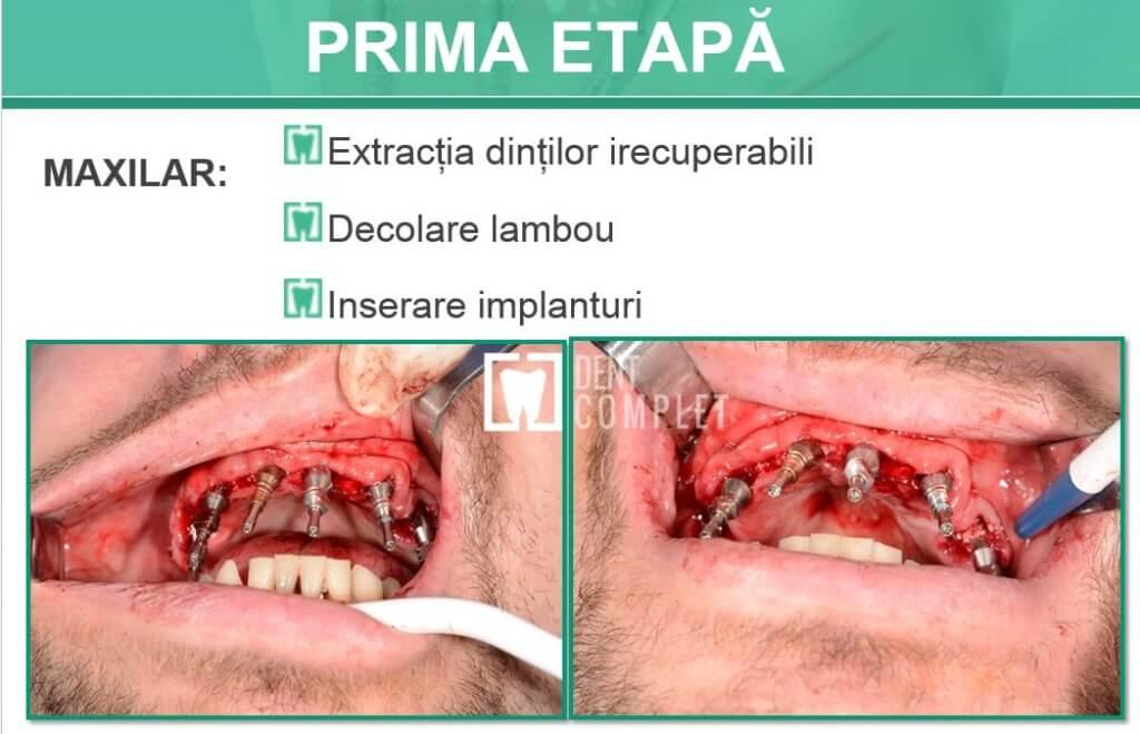 prima-etapa-fast&fixed