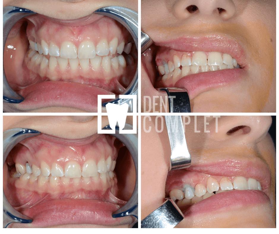 implanturi-dinti