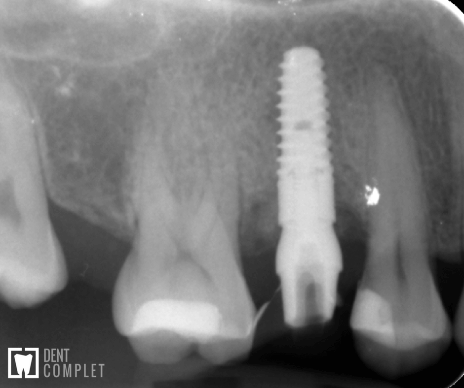 radiografie-dinte-rupt-inainte-dupa