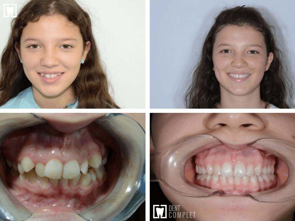 aparat-dentar-adolescenti