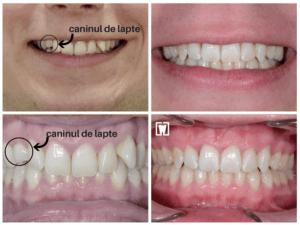 canin-lapte-aparat-dentar