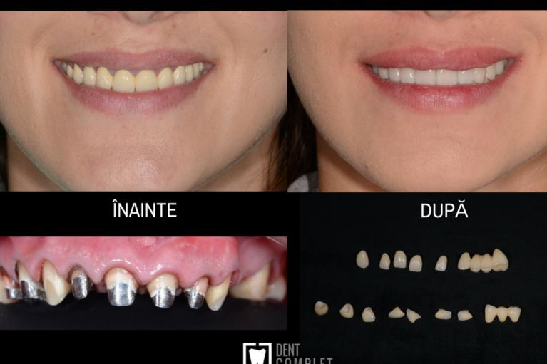 lucrari dentist cluj