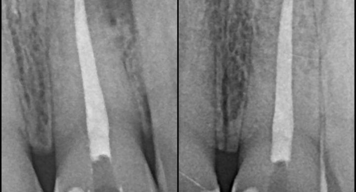 infecția de la rădăcina dinților se poate vindeca