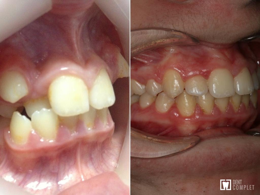 caz grav ortodontic cluj
