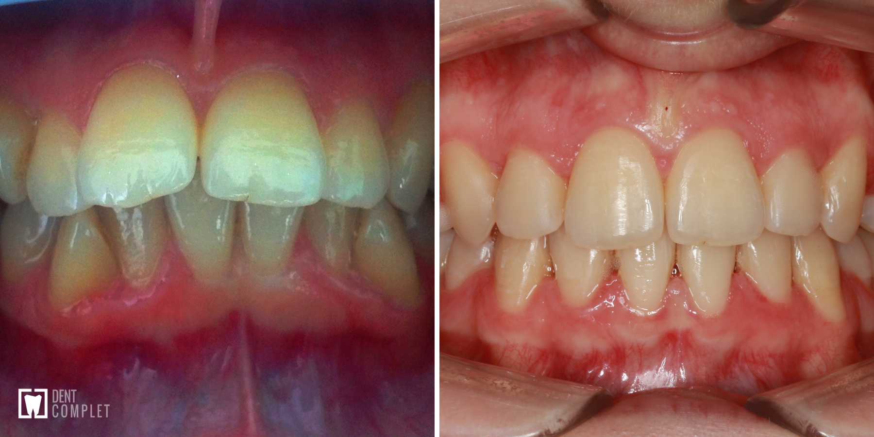 caz-ortodontic-cluj