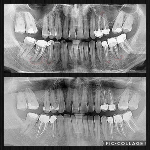 tratament endodontic cluj