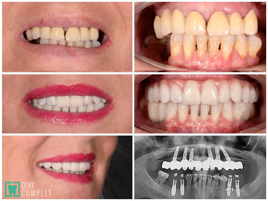 pacient-parodontoza-implant