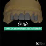 wax in stomatologie