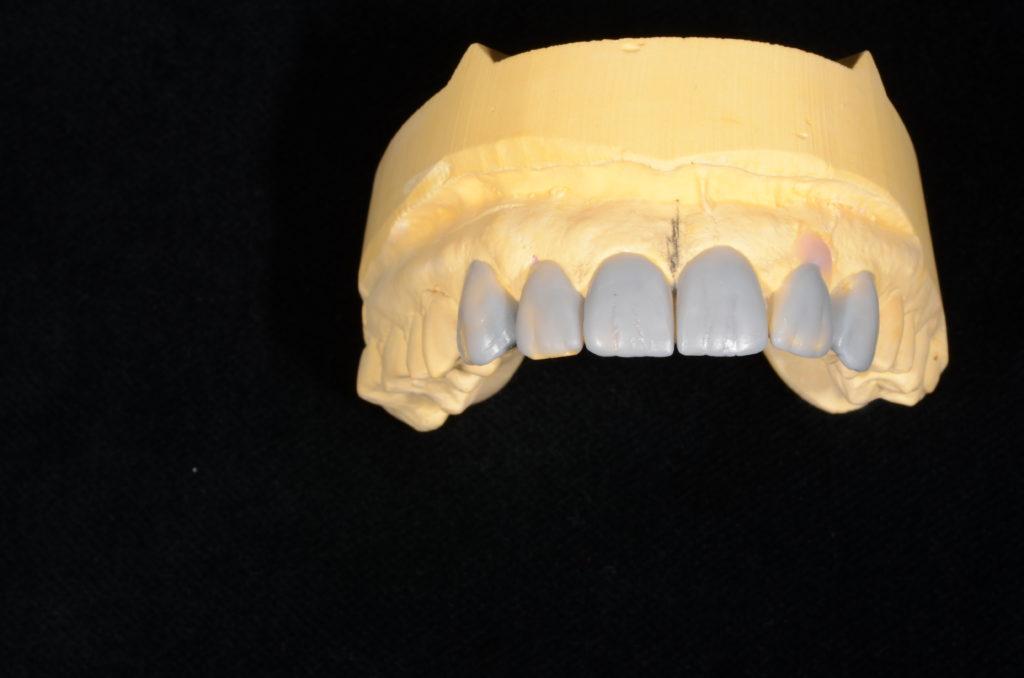 implanturi-dentare-cluj