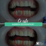 albirea interna a dintilor