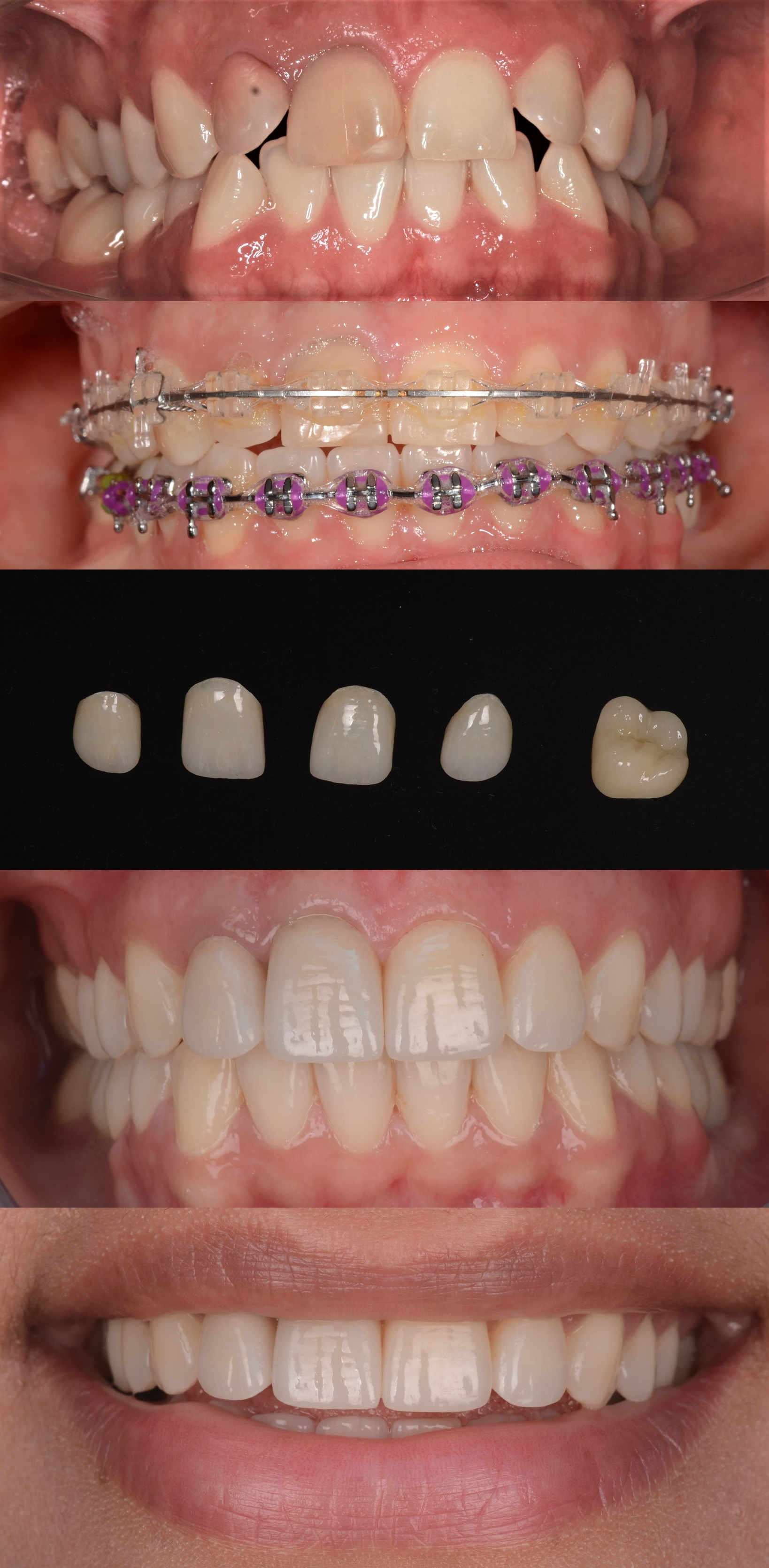 caz clinic complex de implanturi dentare