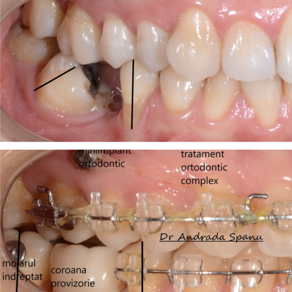 caz ortodontic dent complet