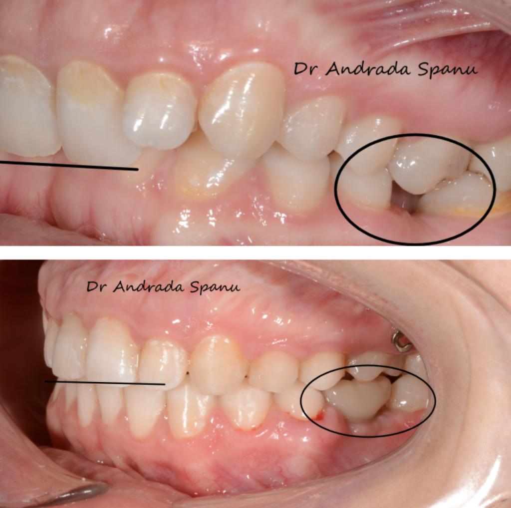 caz ortodontic complex