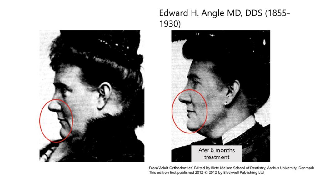 caz ortodontic