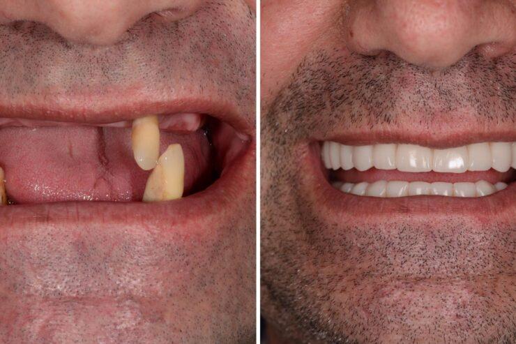 implanturi rapide