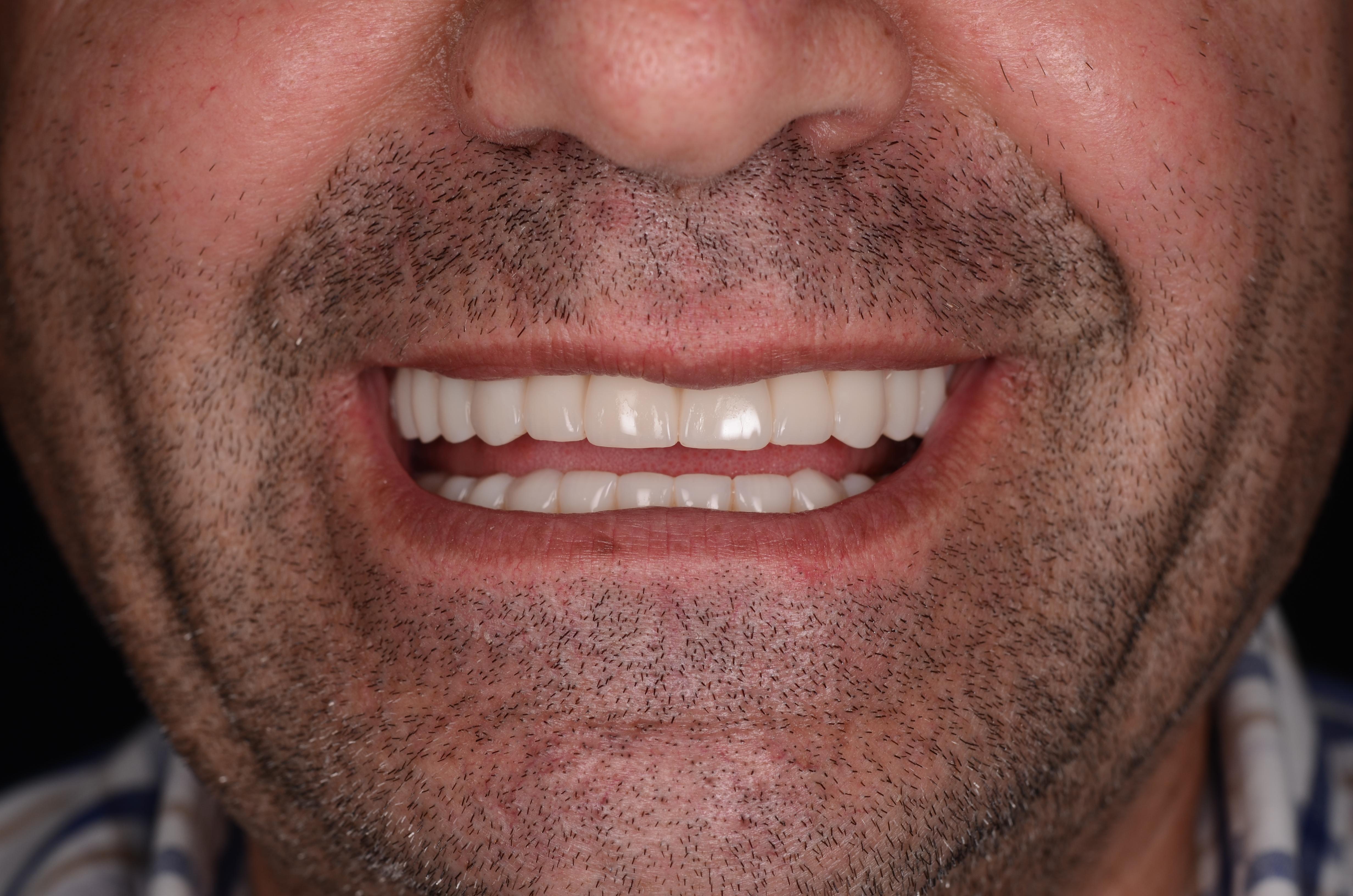 caz clinic implant dentar