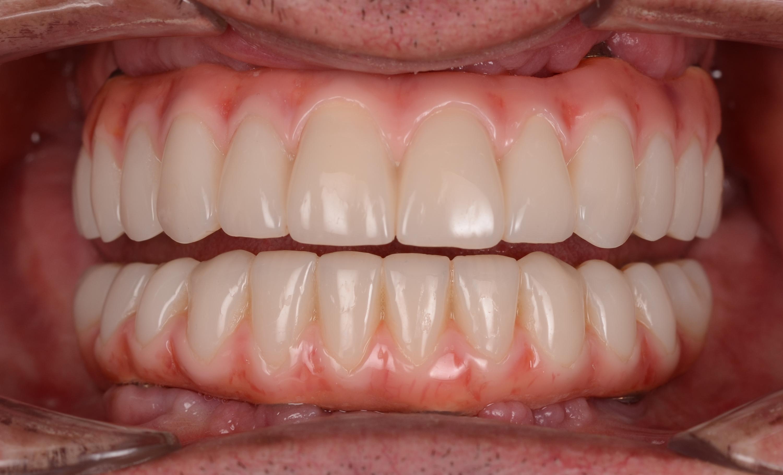 clinica implant dentar romania