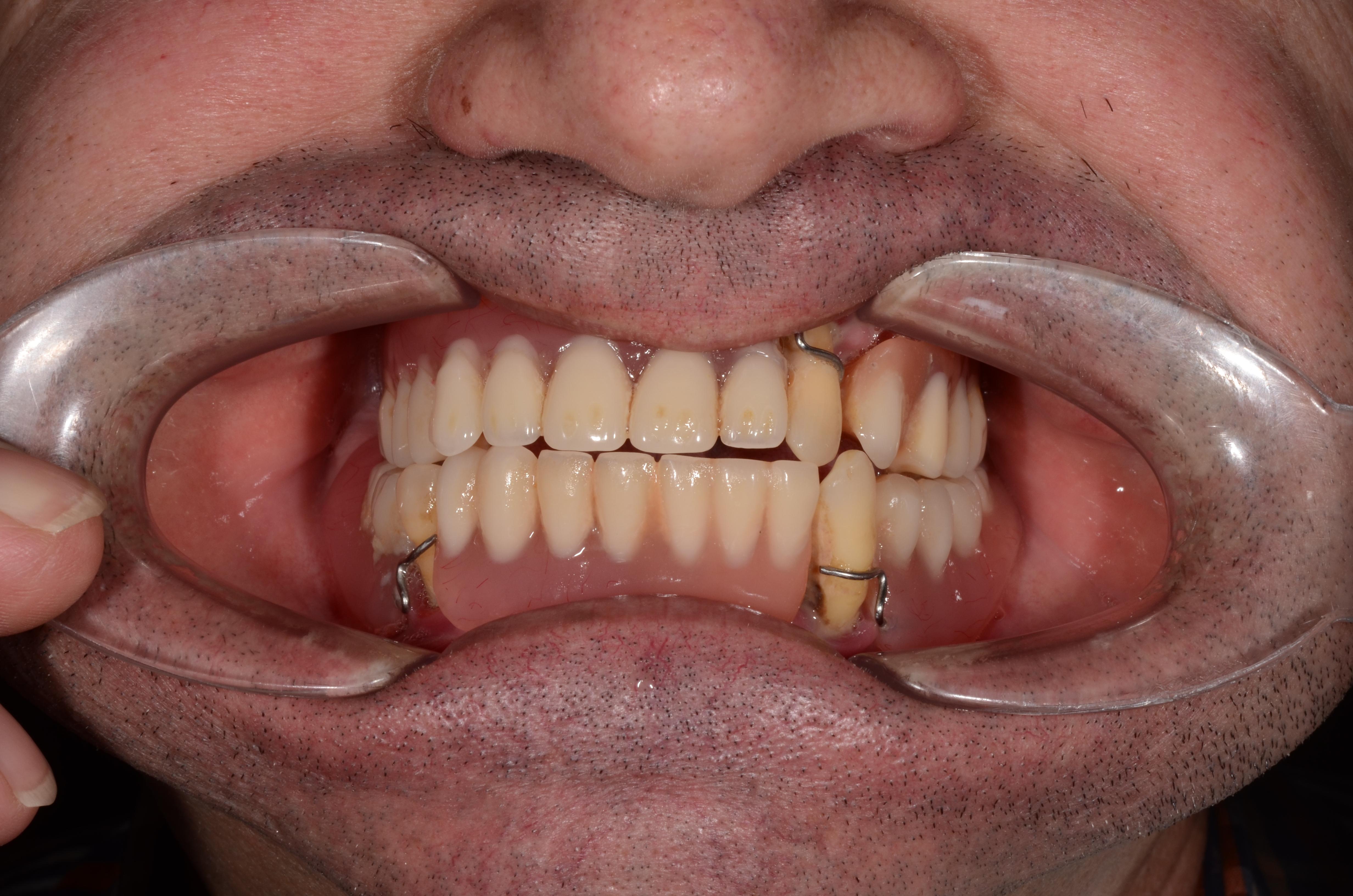 clinica implant dentar cluj