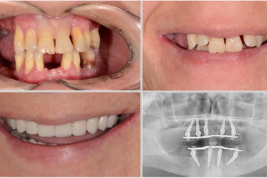 implanturi in 24 de ore