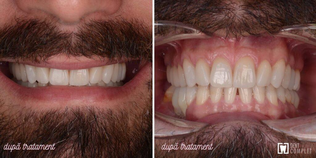 caz clinic implant si fatete dentare