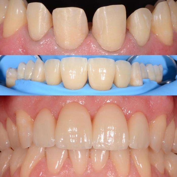 avantaje fatete dentare