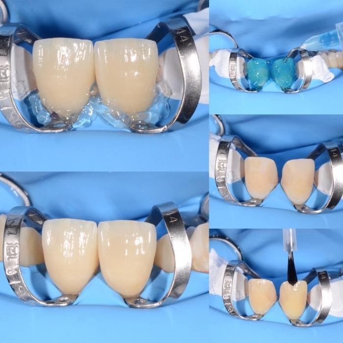 plan tratament fatete dentare