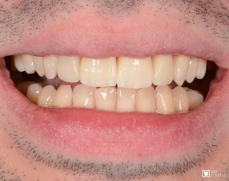 pacient fatete dentare