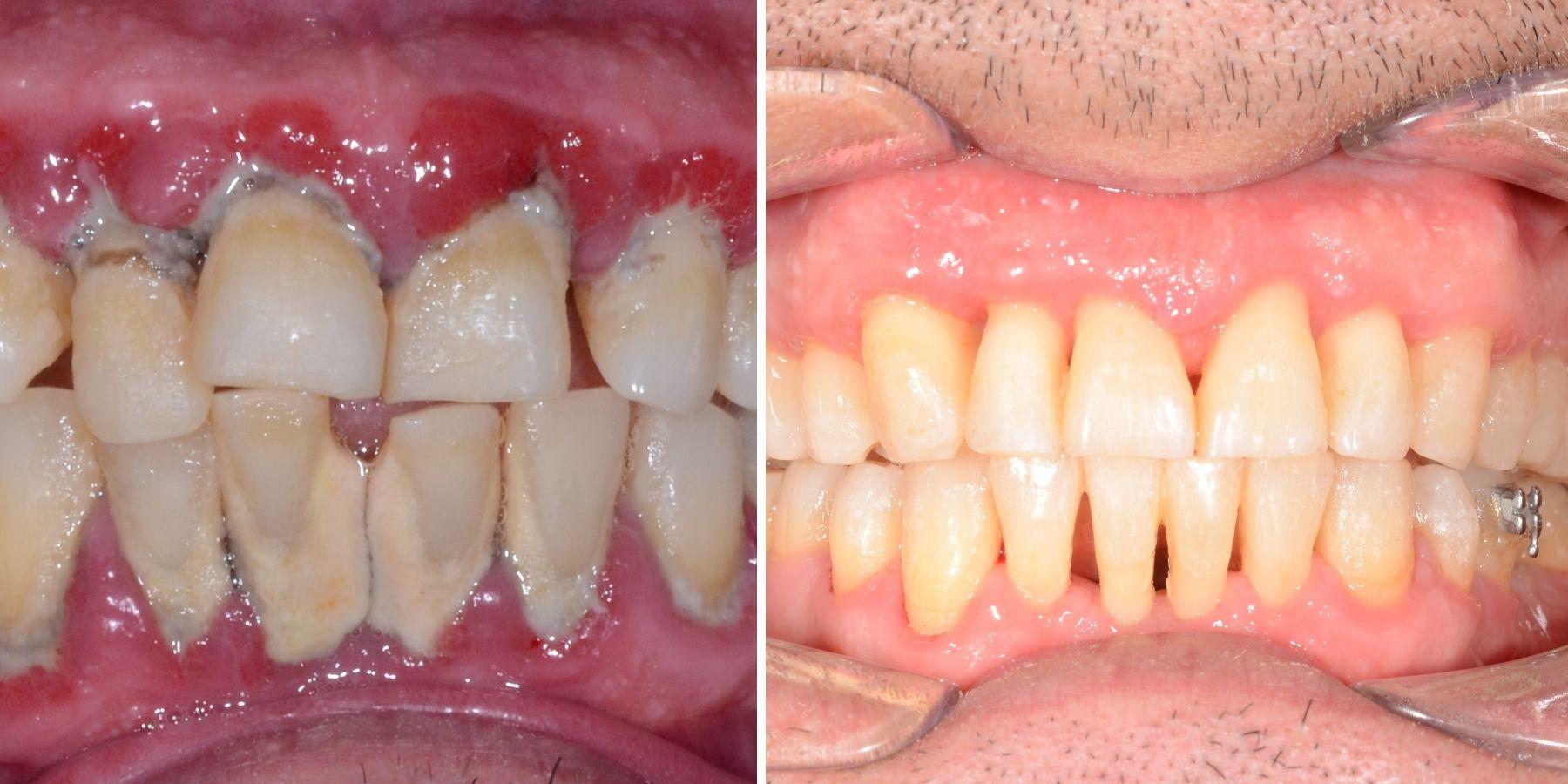 parodontoza tratament
