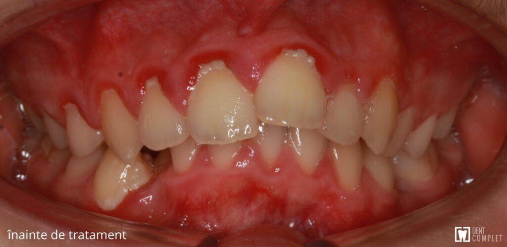 ocluzie adanca dent complet