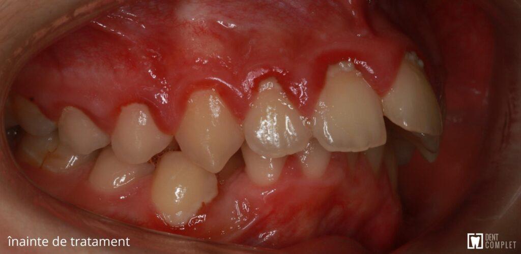 ocluzie dentară