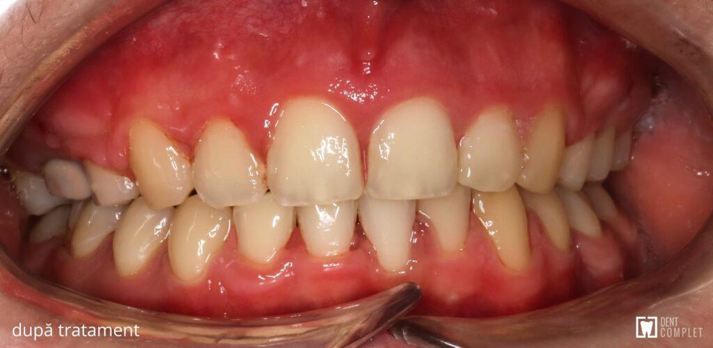 caz clinic dent complet