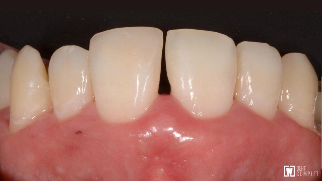 caz parodontita