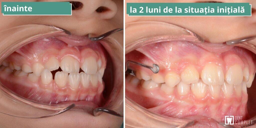 anomalii dentatie