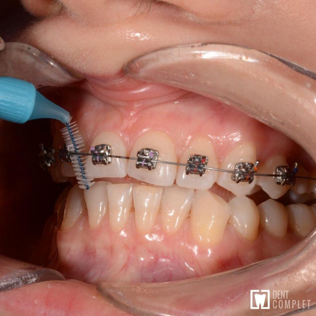 În ce direcție trebuie periați dinții care au aparat dentar fix?
