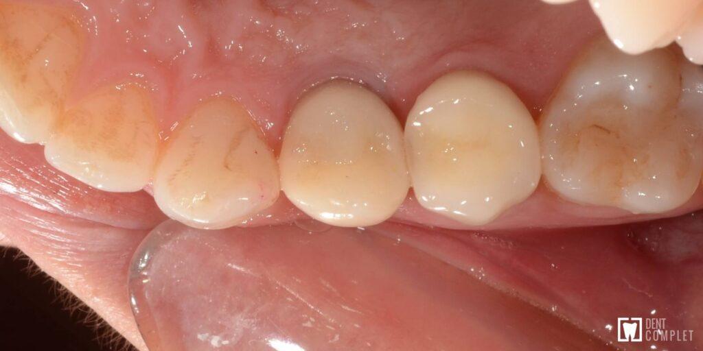 implant imediat bredent
