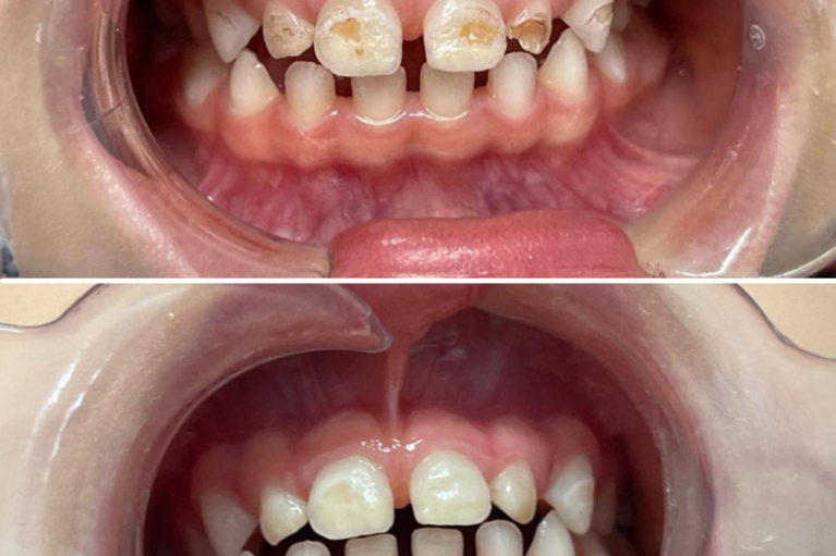 demineralizari dinti