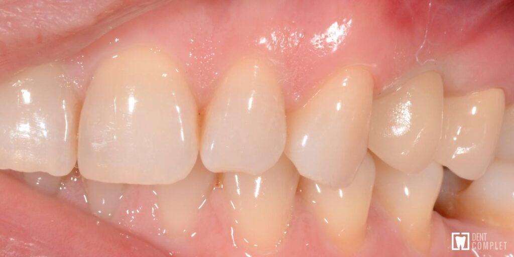 implant bredent