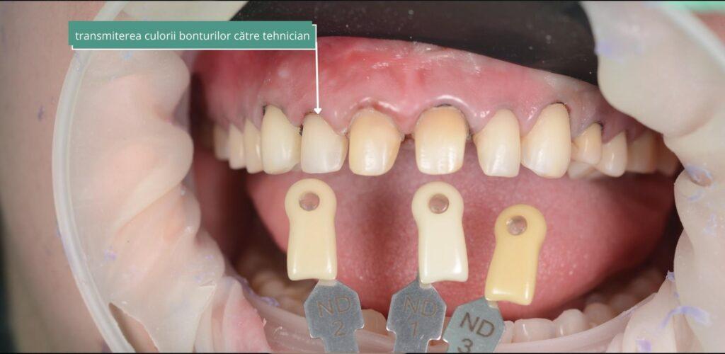culoare fatete dentare