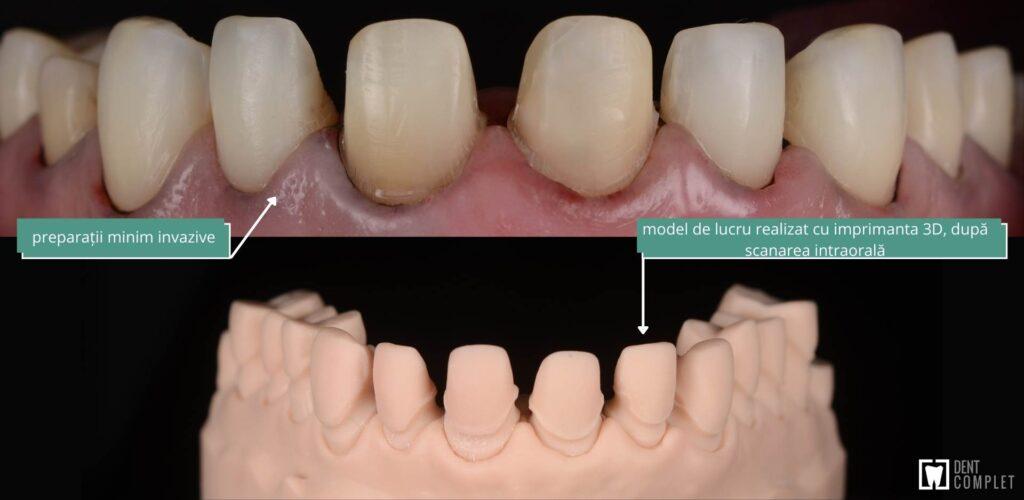 preparatii fatete dentare