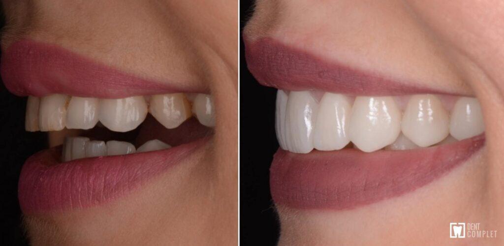 inainte si dupa fatete dentare
