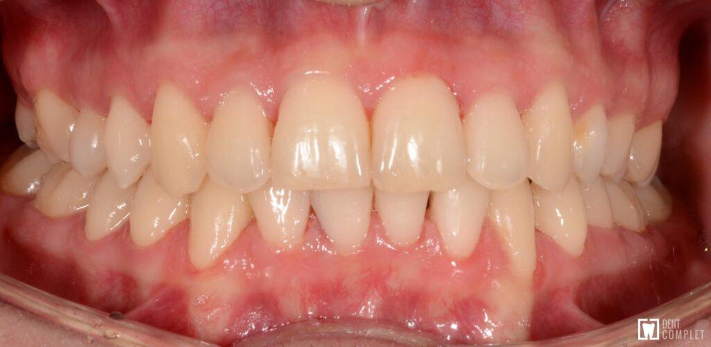 aparat dentar