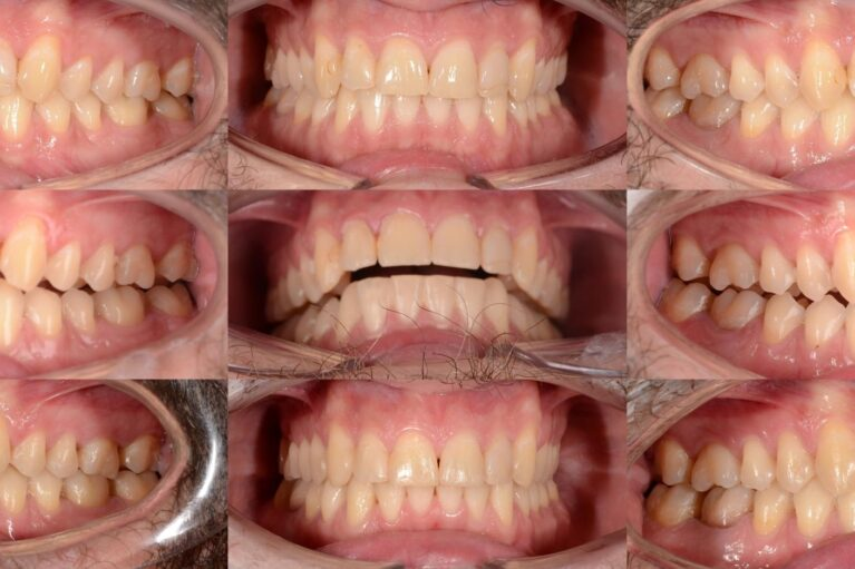 caz clinic Caz clinic: dureri ale articulației temporo-mandibulare
