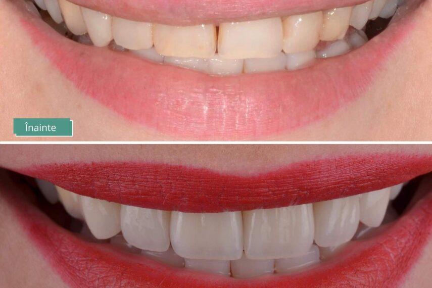 fațete și coroane dentare