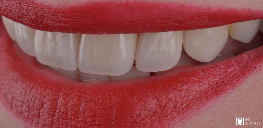 fatete dentare - zambet de hollywood